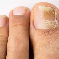 how to get rid of fingernail fungus