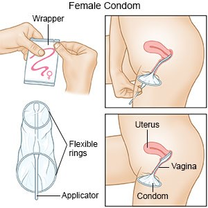 how to use female condoms